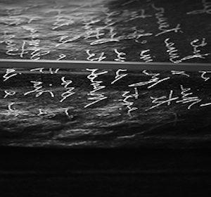 17180__Lacuna